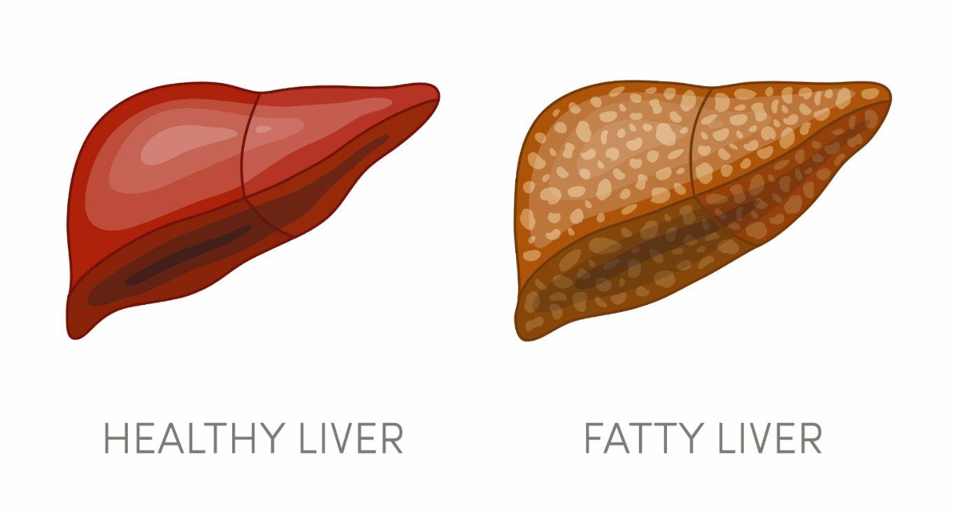 Fatty Liver - GBL Hospital