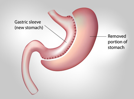 Bariatric-Surgery-in-Indore-India