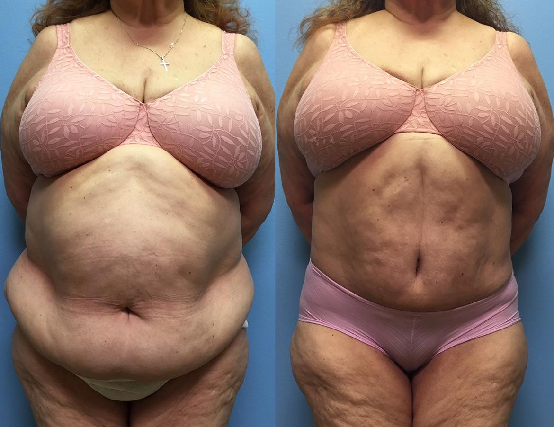 Liposuction – GBL Hospital