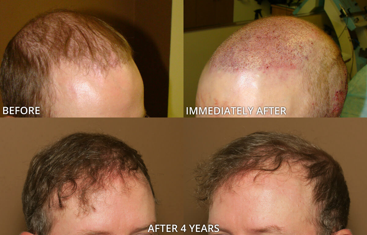 hair-transplant-before-and-after